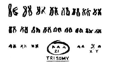 [Image: Down Syndrome chromosomes 2.jpg]