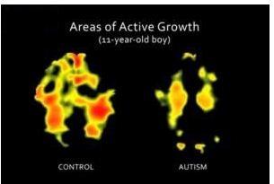 [Image: autismbrain.JPG]